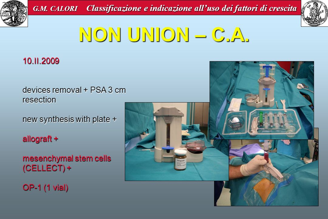 NON UNION – C.A. 10.II.2009 devices removal + PSA 3 cm resection