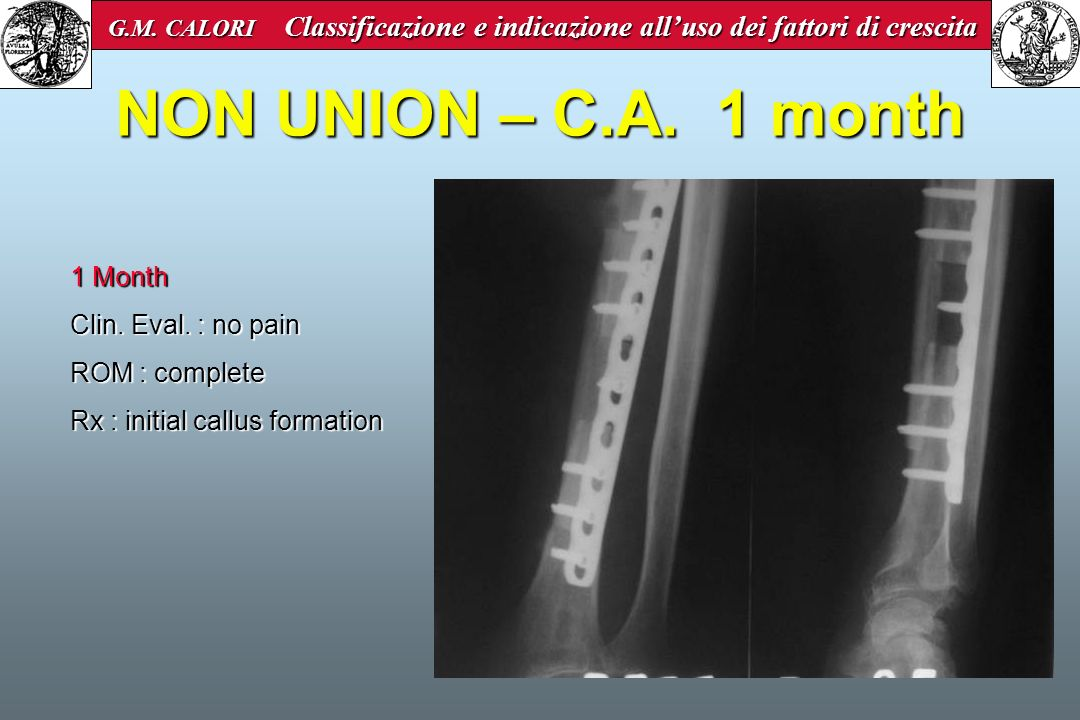 NON UNION – C.A. 1 month 1 Month Clin. Eval. : no pain ROM : complete