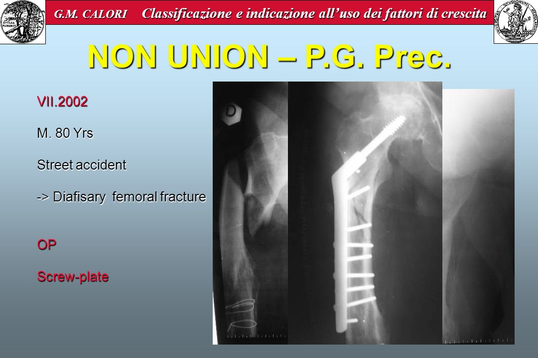 NON UNION – P.G. Prec. VII.2002 M. 80 Yrs Street accident