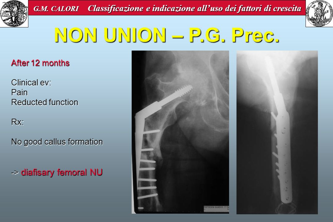 NON UNION – P.G. Prec. After 12 months Clinical ev: Pain