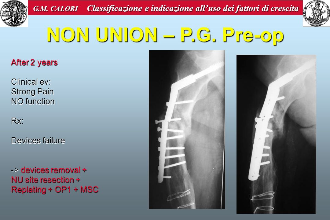 NON UNION – P.G. Pre-op After 2 years Clinical ev: Strong Pain