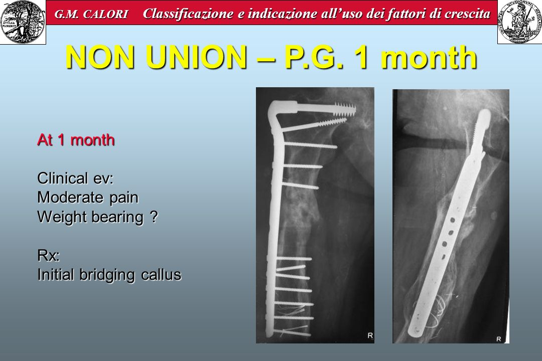 NON UNION – P.G. 1 month At 1 month Clinical ev: Moderate pain