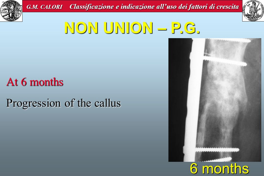 NON UNION – P.G. 6 months At 6 months Progression of the callus