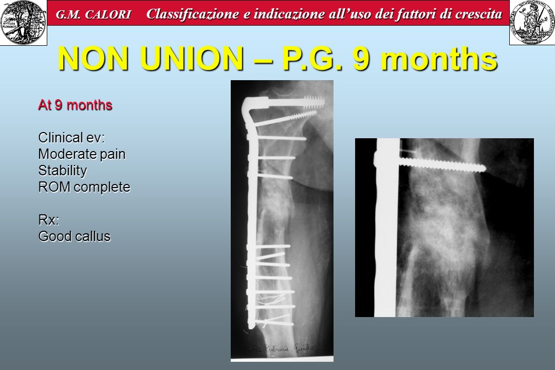 NON UNION – P.G. 9 months At 9 months Clinical ev: Moderate pain