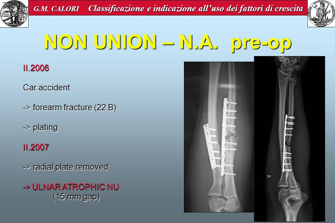 NON UNION – N.A. pre-op II.2006 Car accident