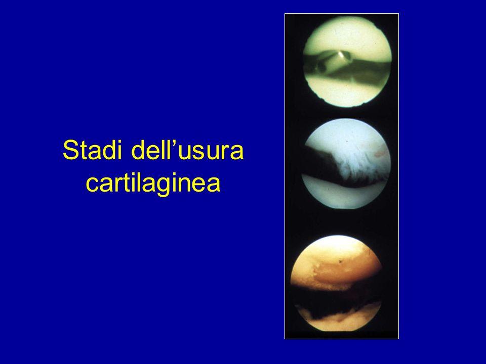 Stadi dell'usura cartilaginea