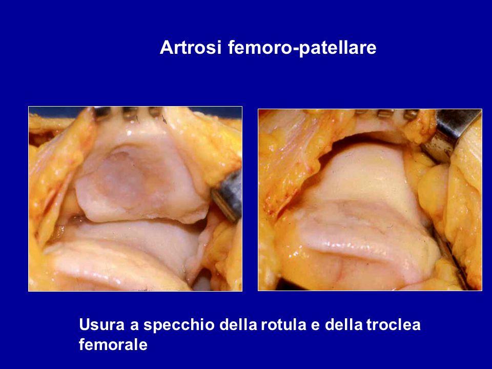 Artrosi femoro-patellare