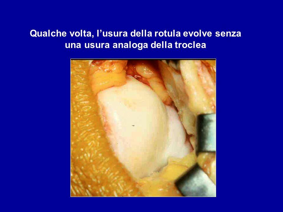 Qualche volta, l'usura della rotula evolve senza una usura analoga della troclea