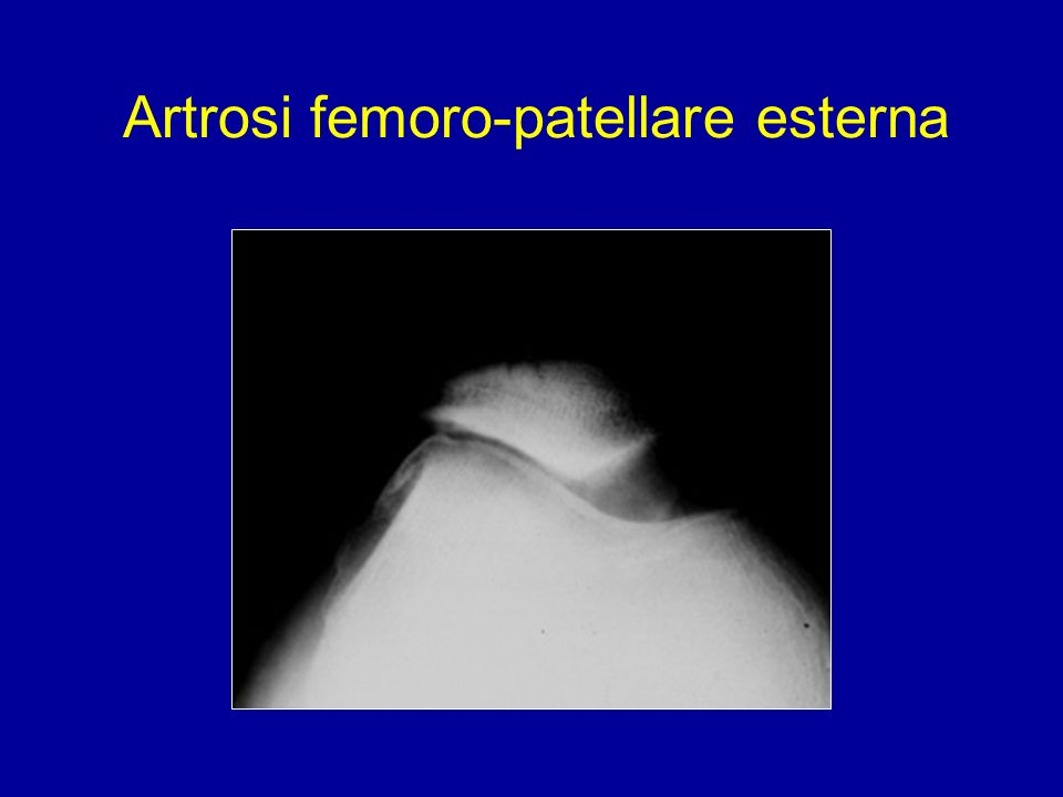 Artrosi femoro-patellare esterna