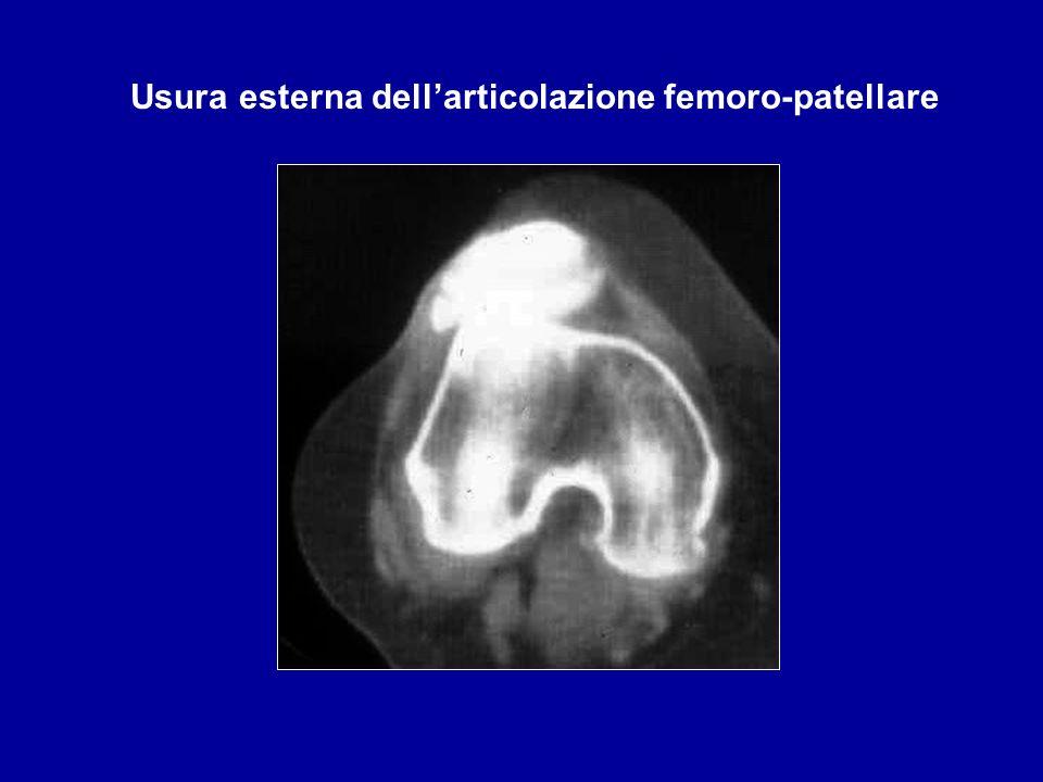 Usura esterna dell'articolazione femoro-patellare
