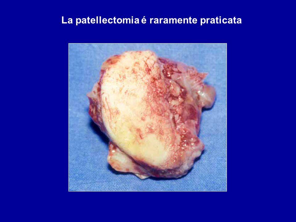 La patellectomia é raramente praticata