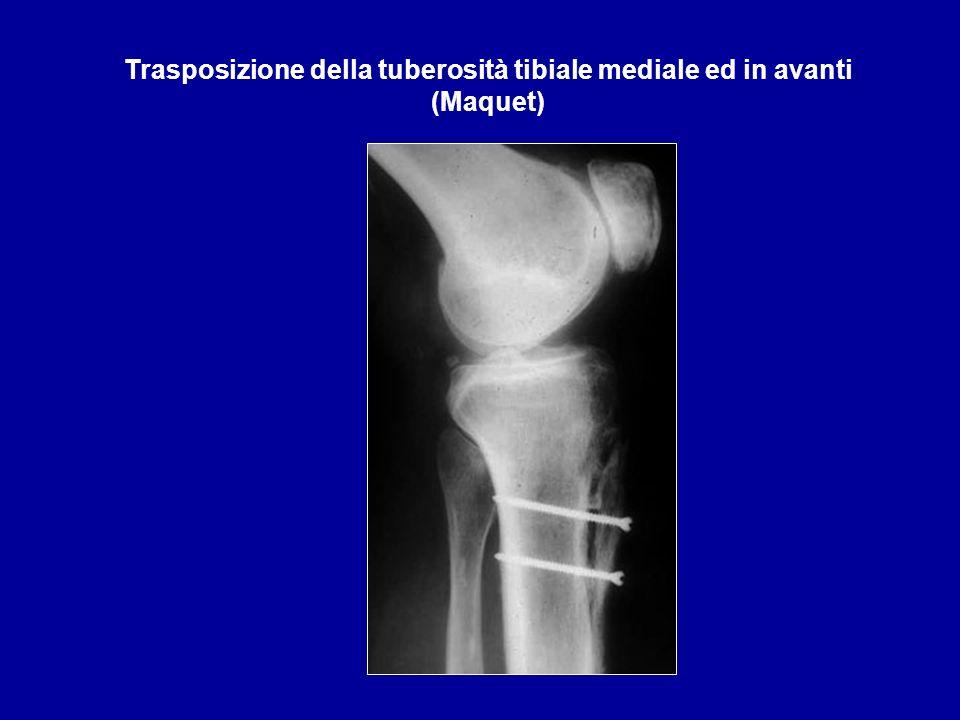 Trasposizione della tuberosità tibiale mediale ed in avanti (Maquet)