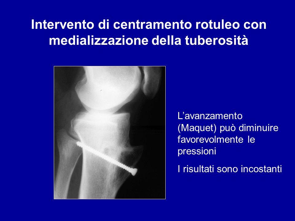 Intervento di centramento rotuleo con medializzazione della tuberosità