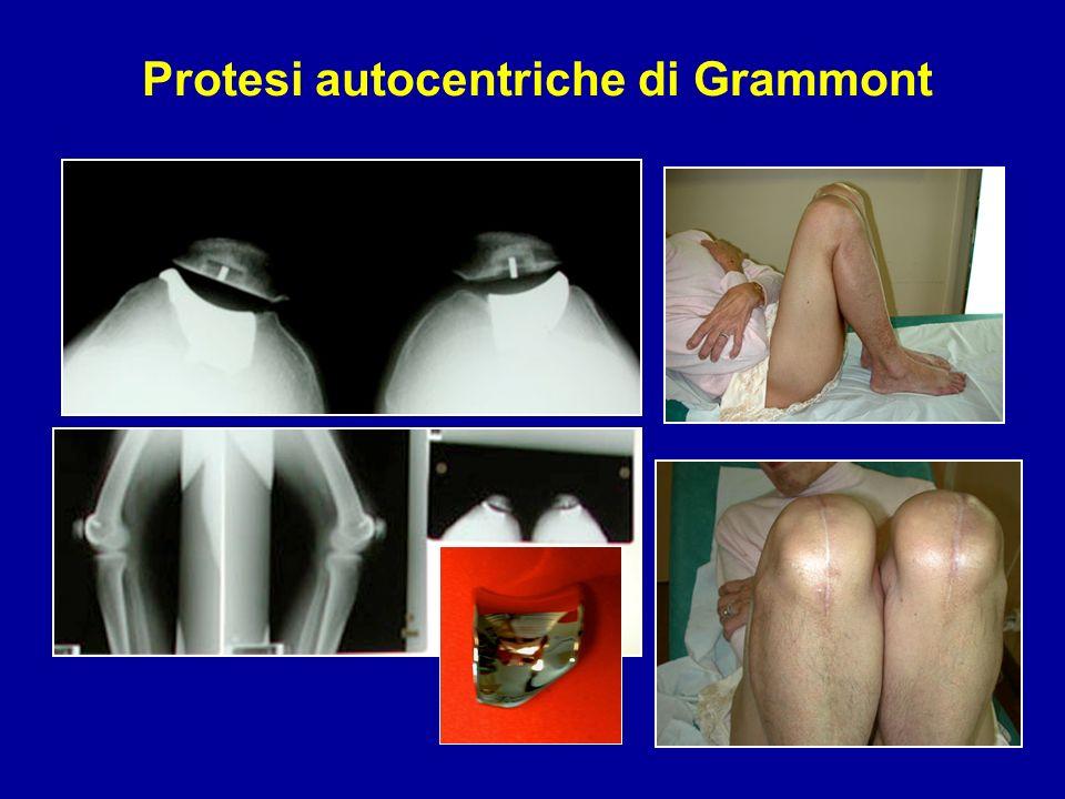 Protesi autocentriche di Grammont