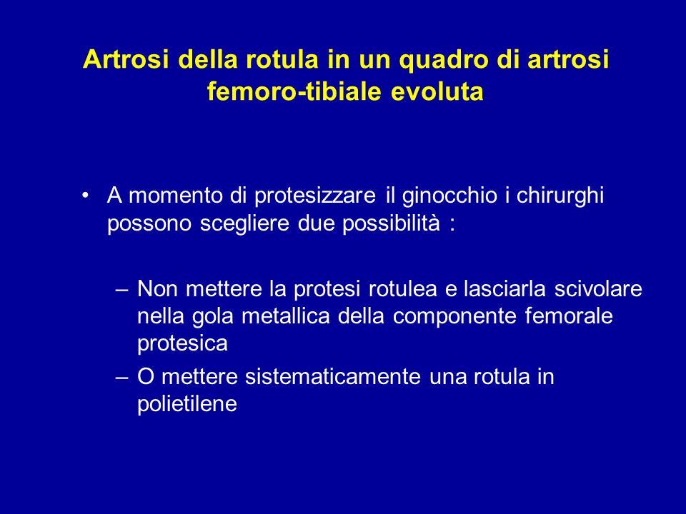 Artrosi della rotula in un quadro di artrosi femoro-tibiale evoluta
