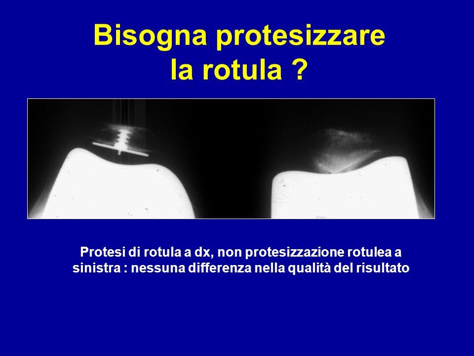 Bisogna protesizzare la rotula