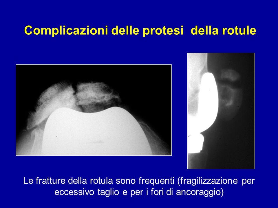 Complicazioni delle protesi della rotule