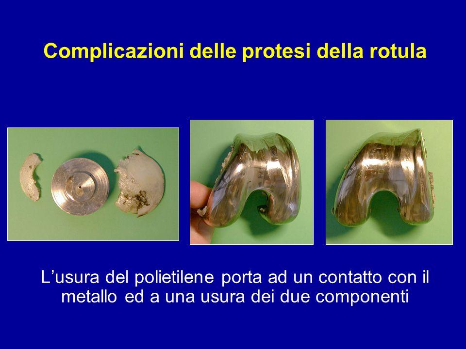Complicazioni delle protesi della rotula