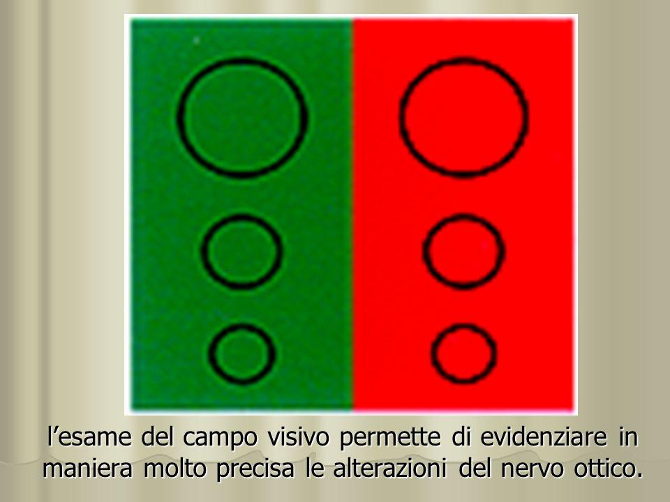 l'esame del campo visivo permette di evidenziare in maniera molto precisa le alterazioni del nervo ottico.