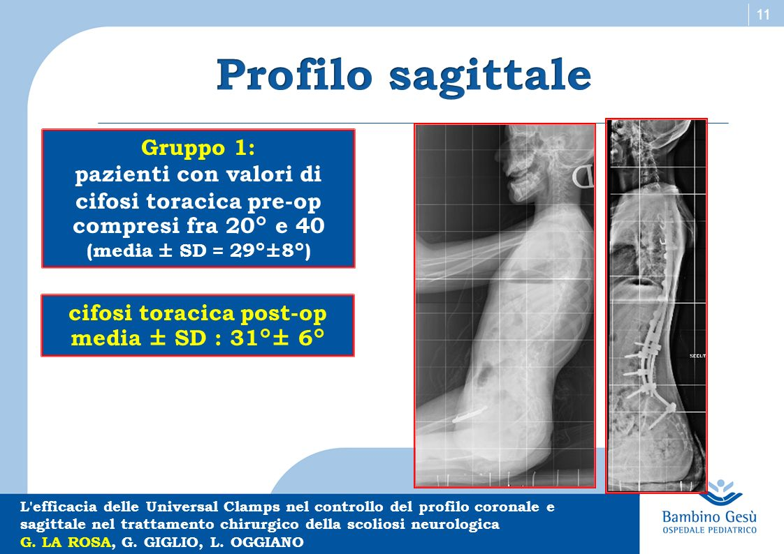 cifosi toracica post-op media ± SD : 31°± 6°