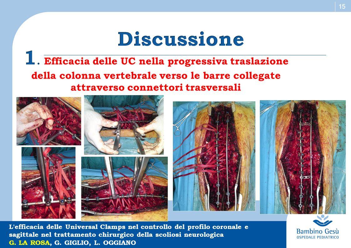Discussione 1. Efficacia delle UC nella progressiva traslazione della colonna vertebrale verso le barre collegate attraverso connettori trasversali.