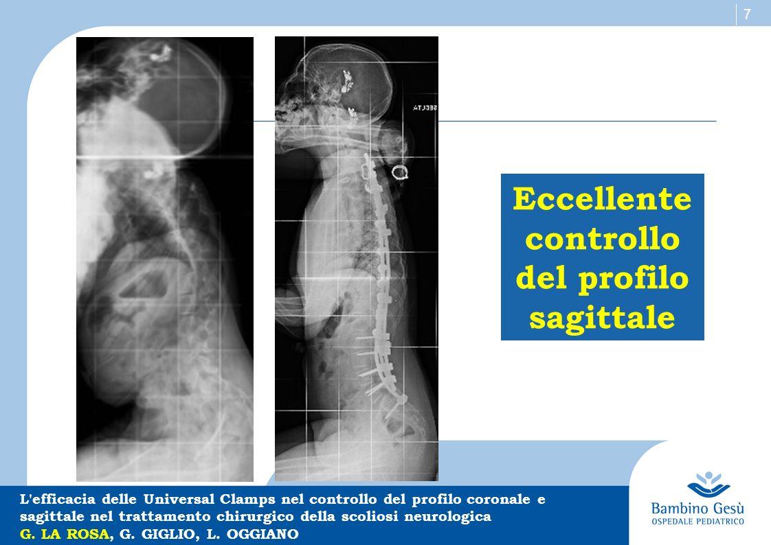 Eccellente controllo del profilo sagittale