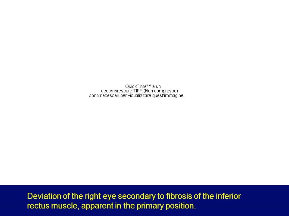 Abnormal eye movements produced by thyroid-associated ophthalmopathy