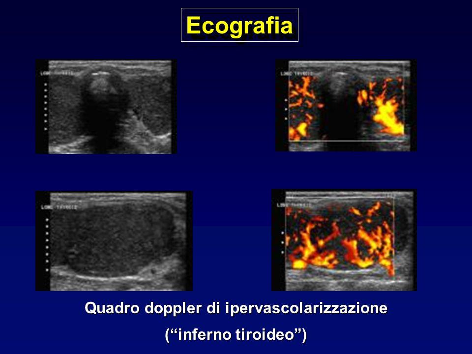 Quadro doppler di ipervascolarizzazione