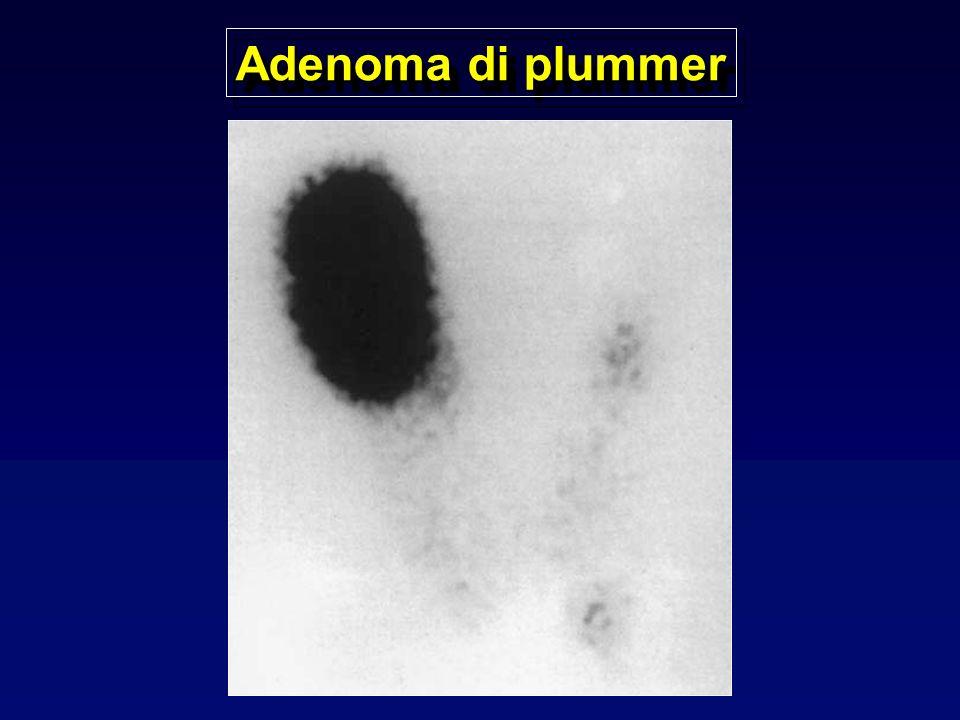 Adenoma di plummer