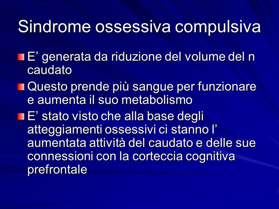 Sindrome ossessiva compulsiva