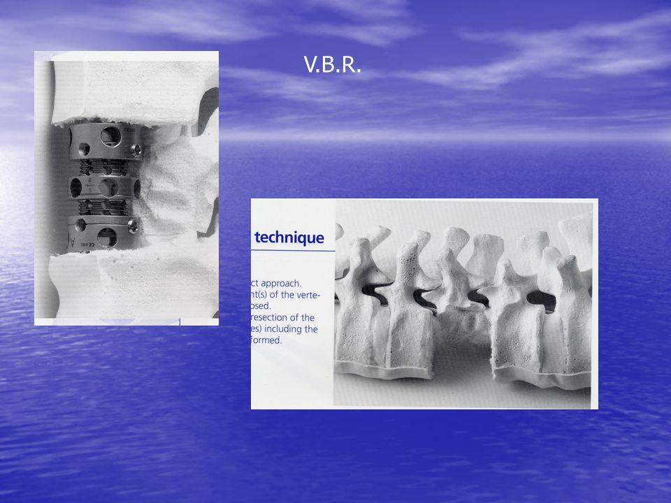 V.B.R.