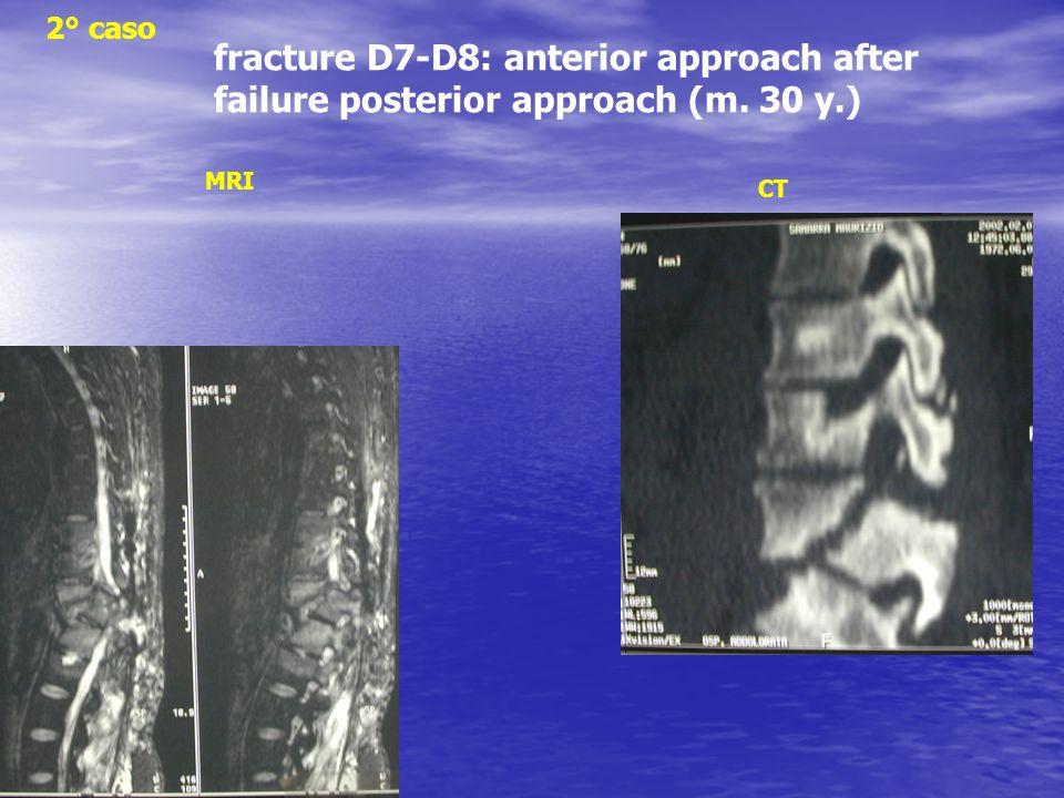 fracture D7-D8: anterior approach after