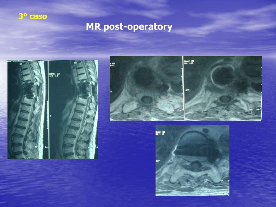 3° caso MR post-operatory