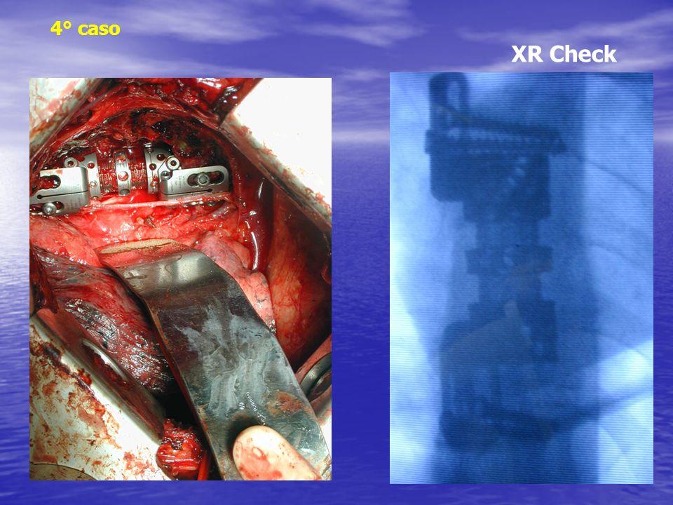 4° caso XR Check