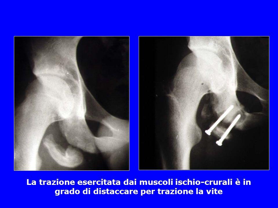 La trazione esercitata dai muscoli ischio-crurali è in grado di distaccare per trazione la vite