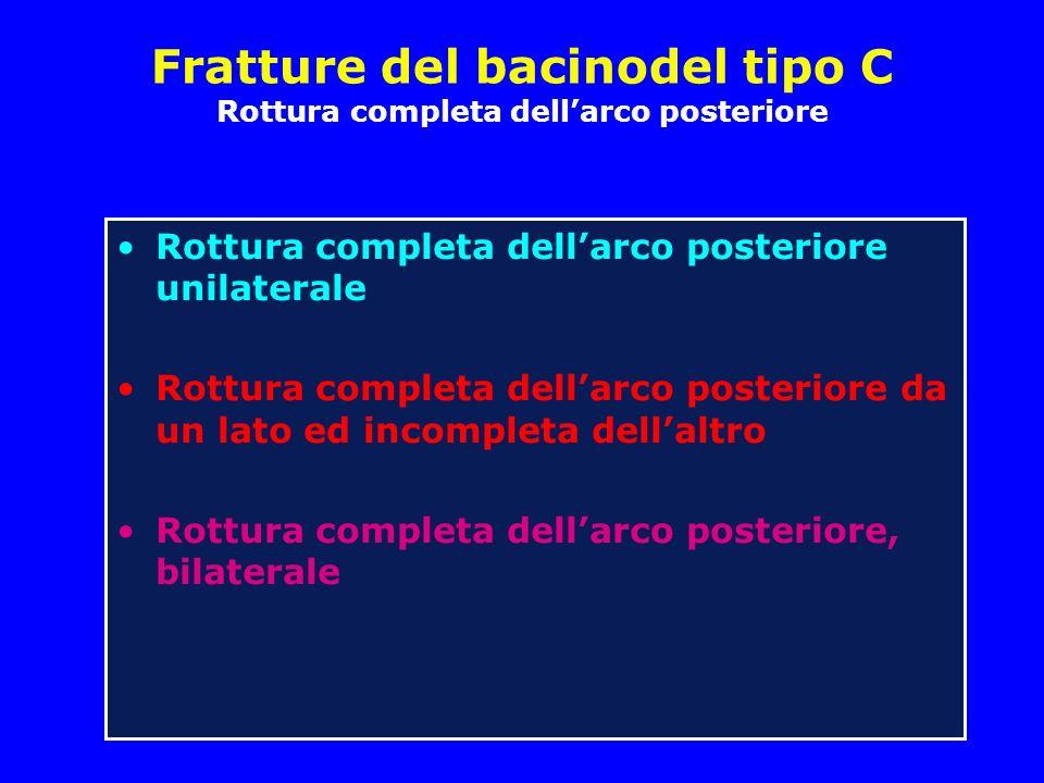Fratture del bacinodel tipo C Rottura completa dell'arco posteriore