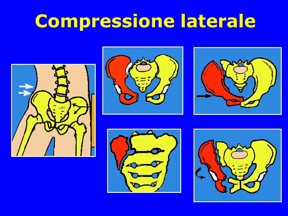 Compressione laterale