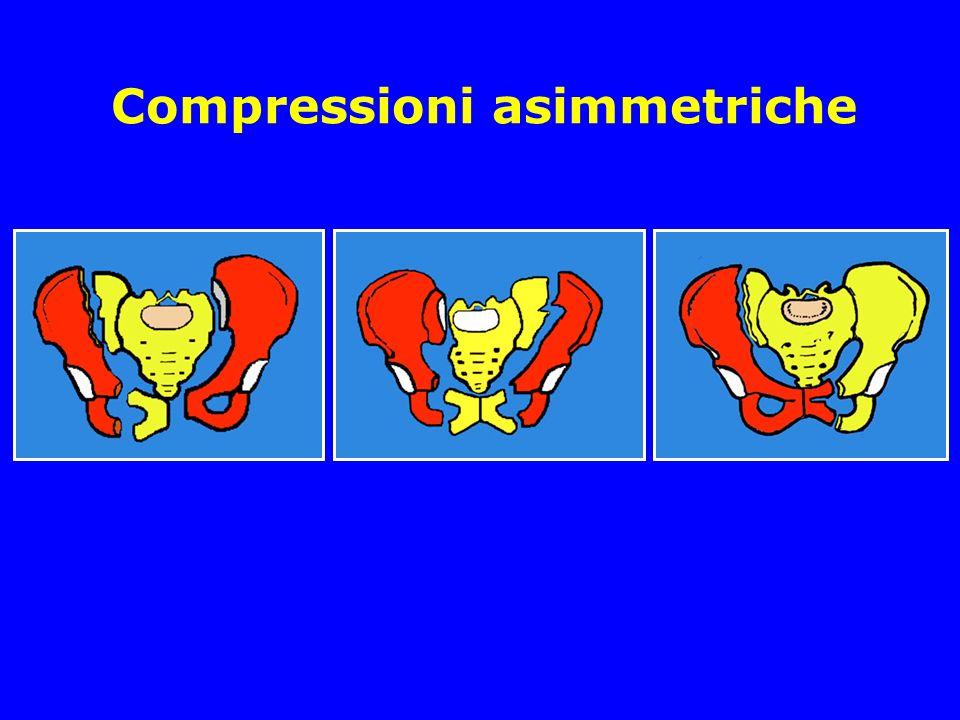 Compressioni asimmetriche
