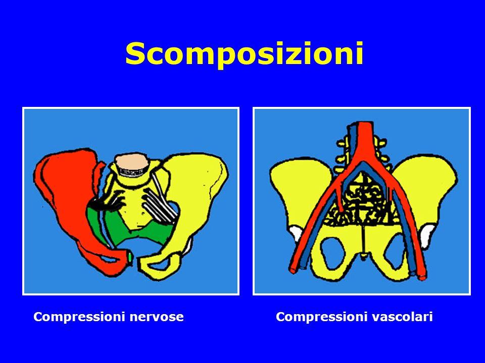 Scomposizioni Compressioni nervose Compressioni vascolari