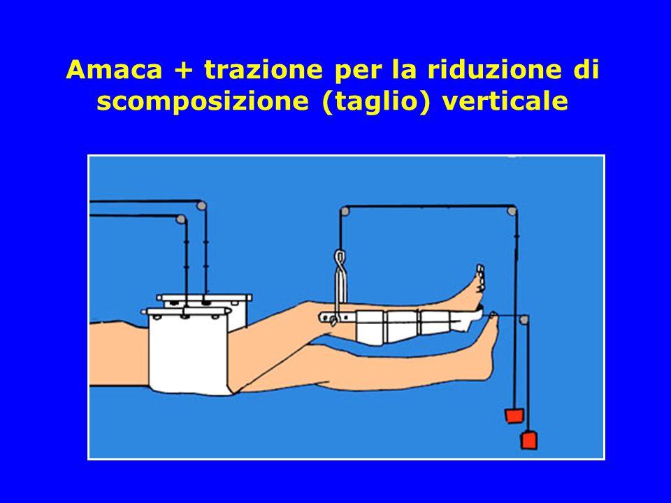 Amaca + trazione per la riduzione di scomposizione (taglio) verticale