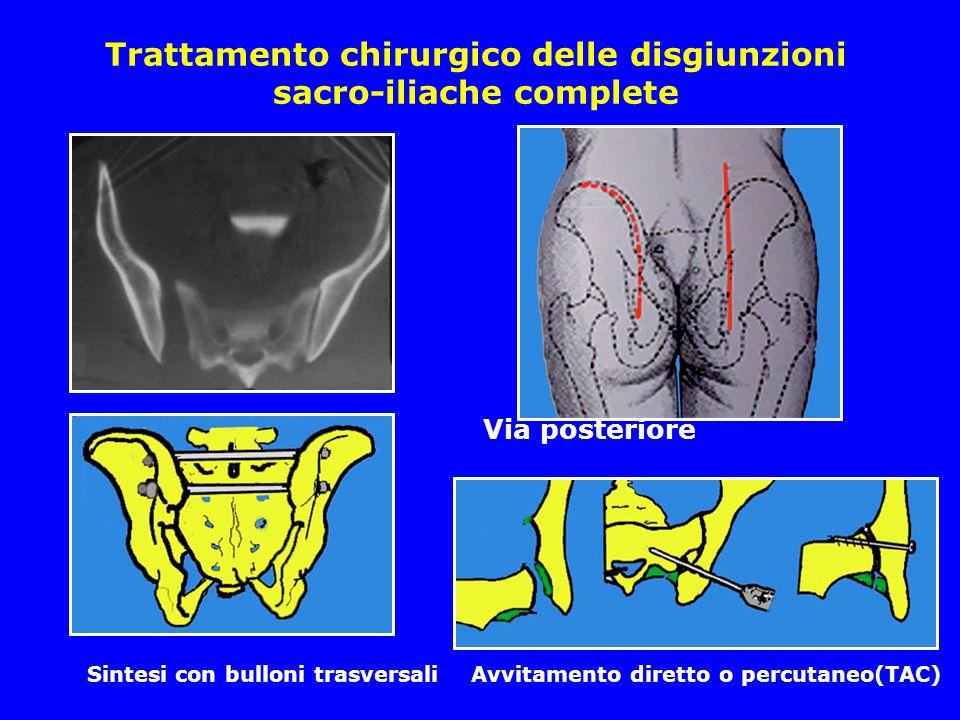 Trattamento chirurgico delle disgiunzioni sacro-iliache complete