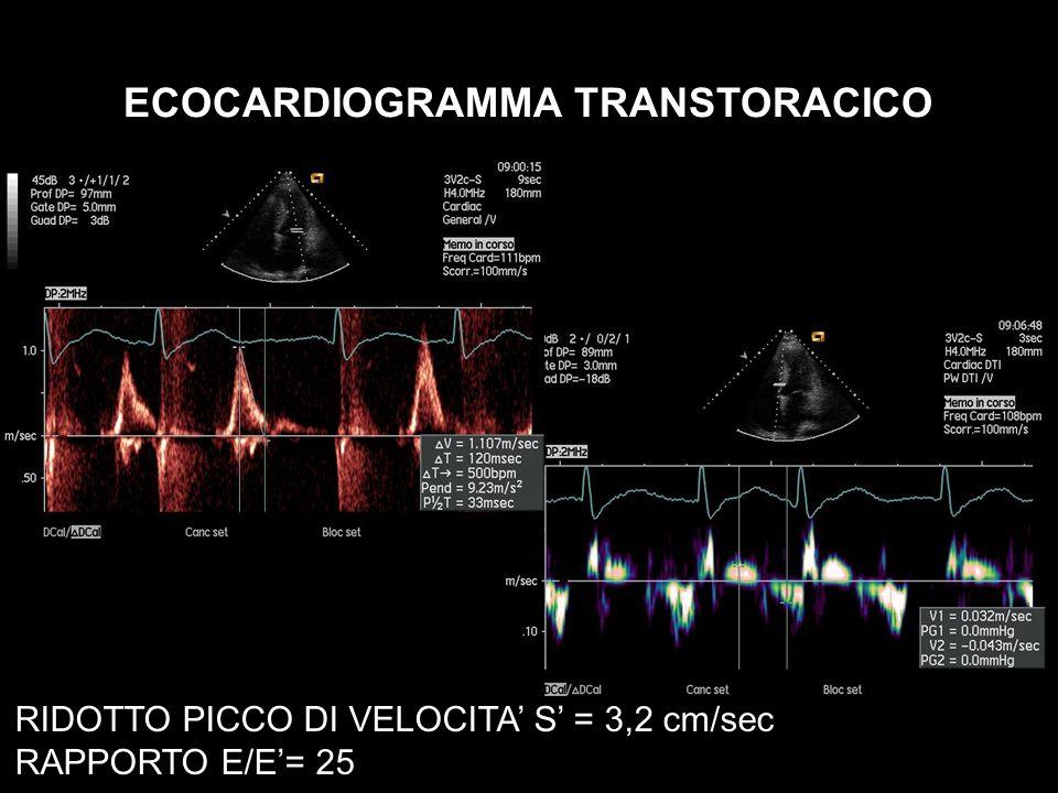 ECOCARDIOGRAMMA TRANSTORACICO