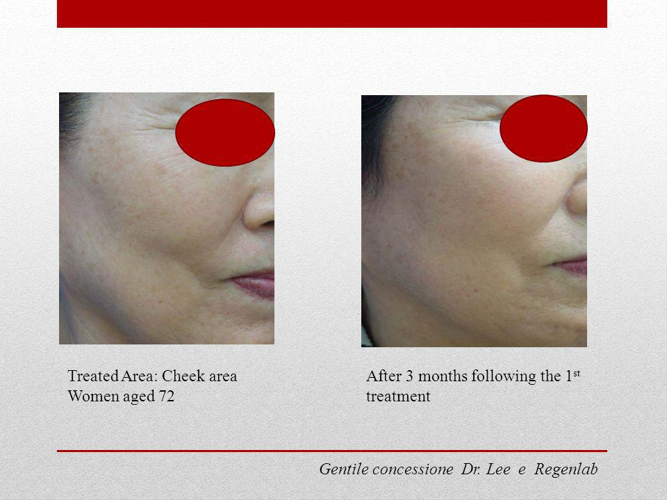 Treated Area: Cheek area Women aged 72