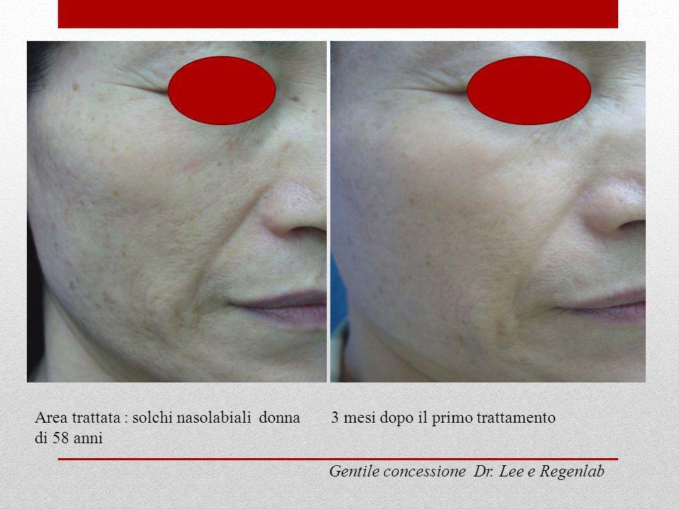 Area trattata : solchi nasolabiali donna di 58 anni