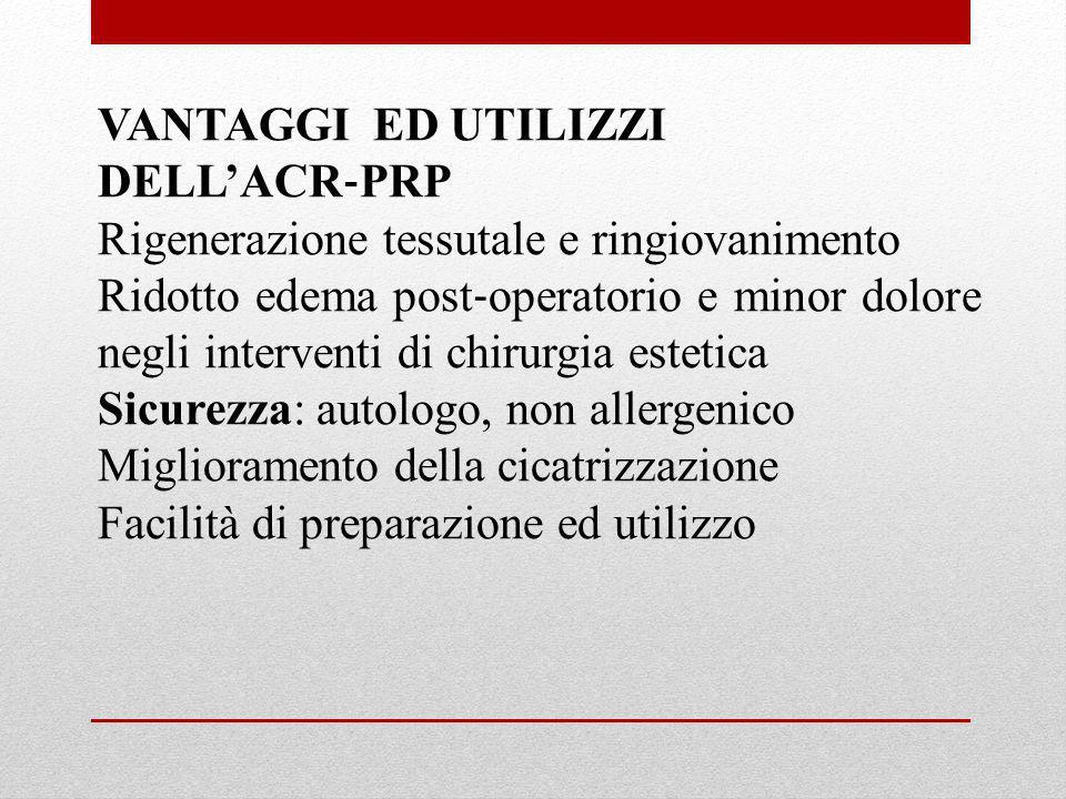 VANTAGGI ED UTILIZZI DELL'ACR‐PRP