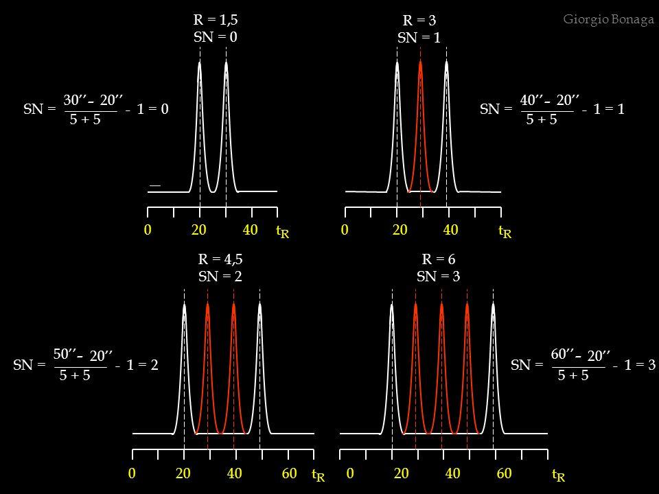 - - - - R = 1,5 SN = 0 R = 3 SN = 1 5 + 5 30'' 20'' SN = - 1 = 0 40''