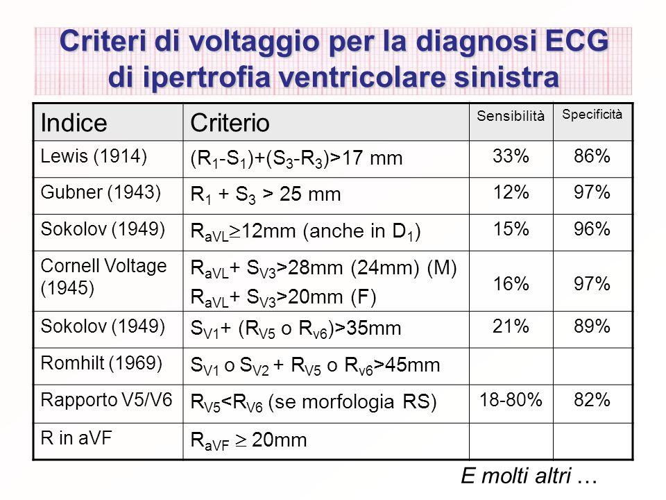 Criteri di voltaggio per la diagnosi ECG di ipertrofia ventricolare sinistra