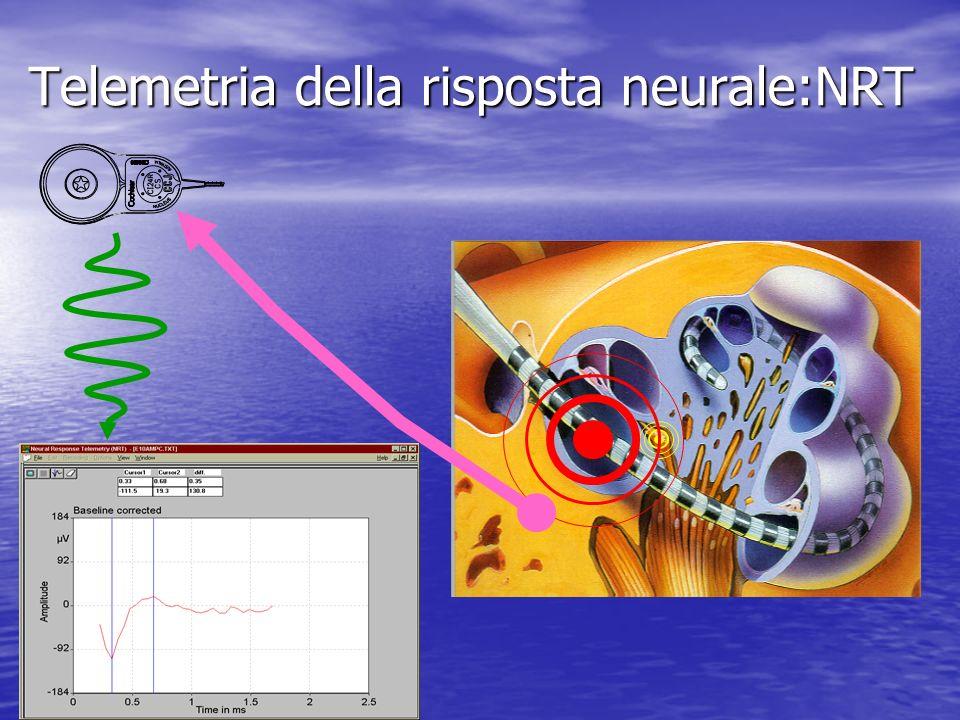 Telemetria della risposta neurale:NRT