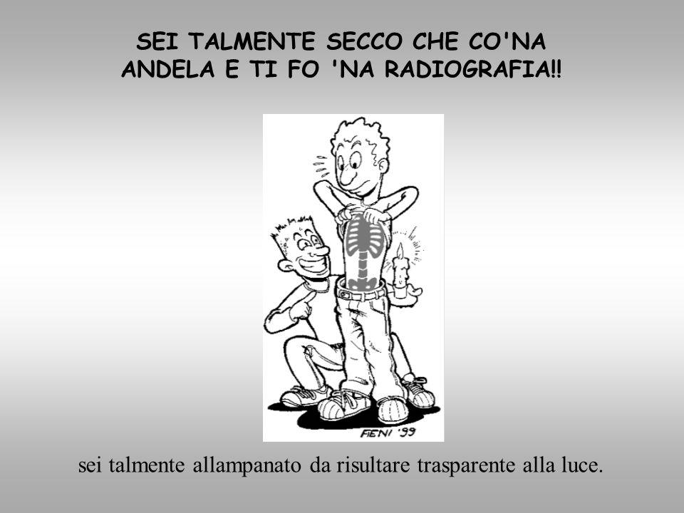 SEI TALMENTE SECCO CHE CO NA ANDELA E TI FO NA RADIOGRAFIA!!