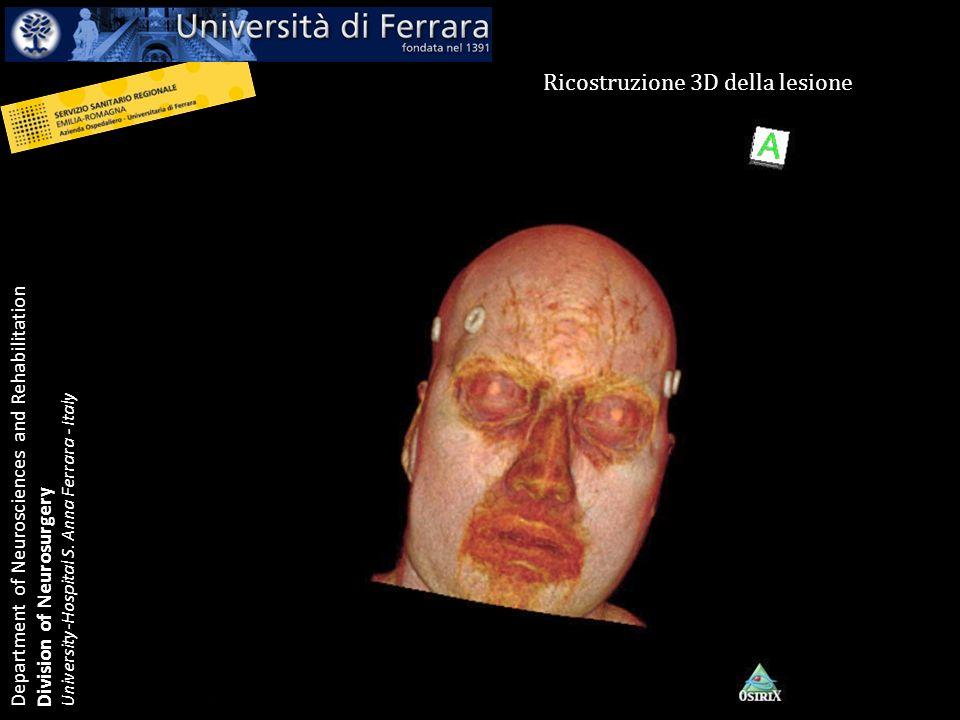 Ricostruzione 3D della lesione